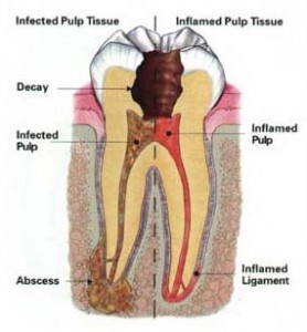 tooth_infection_pic1