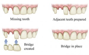Dental-Bridge_1